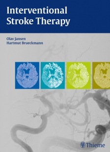 View Details for Interventional Stroke Therapy