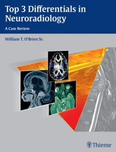 View Details for Top 3 Differentials in Neuroradiology