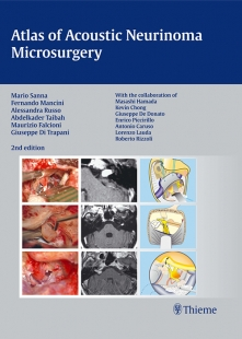 View Details for Atlas of Acoustic Neurinoma Microsurgery