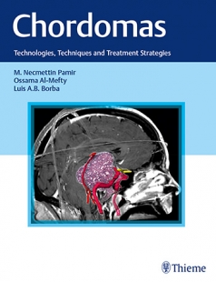 View Details for Chordomas