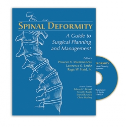 View Details for Spinal Deformity