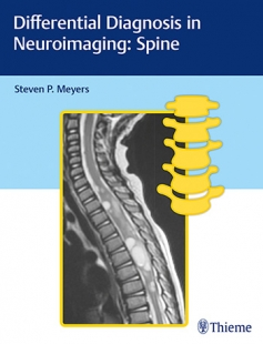 View Details for Differential Diagnosis in Neuroimaging: Spine