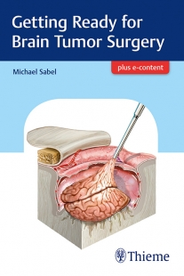 View Details for Getting Ready for Brain Tumor Surgery