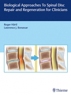 View Details for Biological Approaches to Spinal Disc Repair and Regeneration for Clinicians