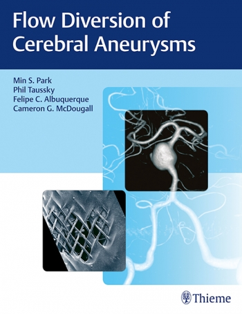 Neurosurgery | Flow Diversion of Cerebral Aneurysms