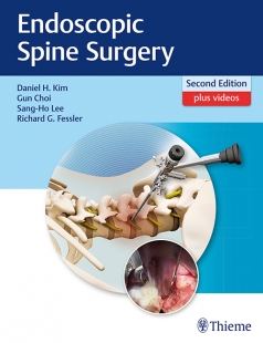 View Details for Endoscopic Spine Surgery