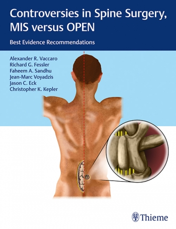 Controversies in Spine Surgery, MIS versus OPEN. Best Evidence Recommendations. Thieme 2018 - Page 2 Item-4735-9781604068818-350x454