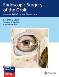 View Details for Endoscopic Surgery of the Orbit