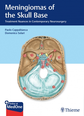 neurosurgery meningiomas of the skull base