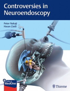 View Details for Controversies in Neuroendoscopy