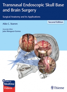 View Details for Transnasal Endoscopic Skull Base and Brain Surgery