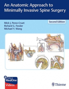 View Details for An Anatomic Approach to Minimally Invasive Spine Surgery