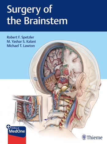 View Details for Surgery of the Brainstem