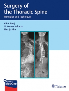 View Details for Surgery of the Thoracic Spine