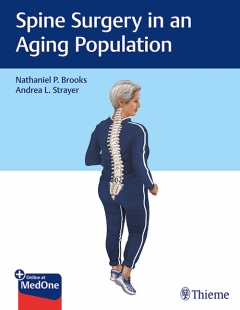 View Details for Spine Surgery in an Aging Population