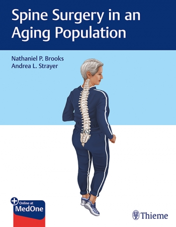 Brooks_Spine-Surgery-Aging-Population_1A_9781626239142_21,6x28_g