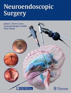 View Details for Neuroendoscopic Surgery