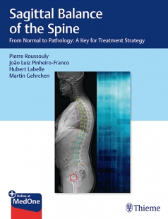 View Details for Sagittal Balance of the Spine