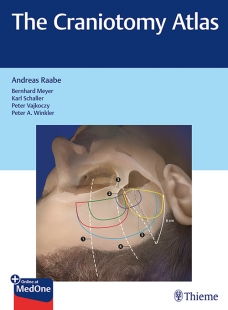 View Details for The Craniotomy Atlas
