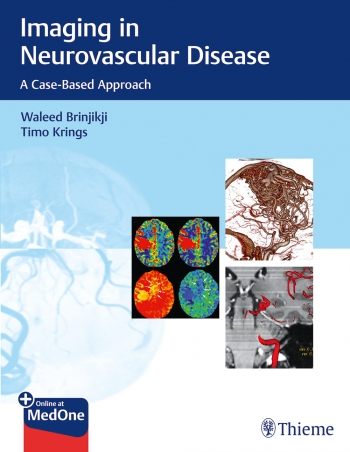 View Details for Imaging in Neurovascular Disease