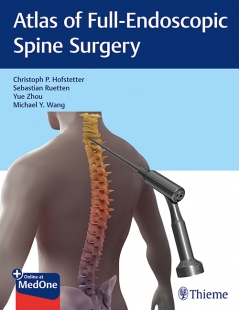 View Details for Atlas of Full-Endoscopic Spine Surgery