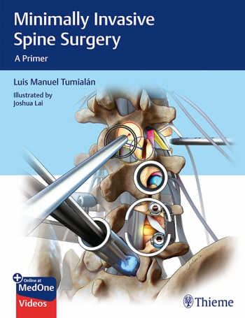 View Details for Minimally Invasive Spine Surgery