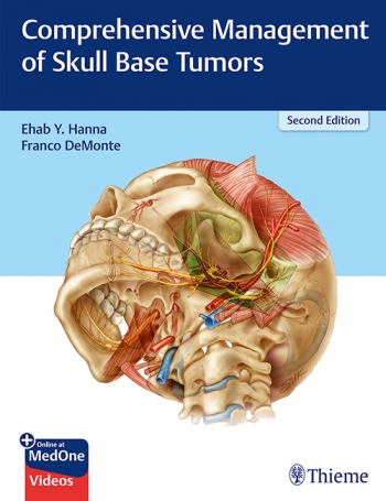 View Details for Comprehensive Management of Skull Base Tumors