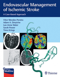 View Details for Endovascular Management of Ischemic Stroke