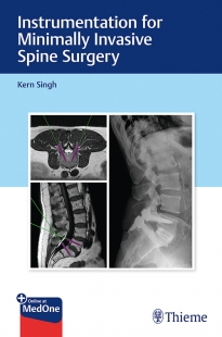 View Details for Instrumentation for Minimally Invasive Spine Surgery