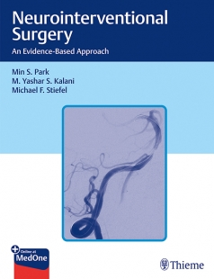 View Details for Neurointerventional Surgery