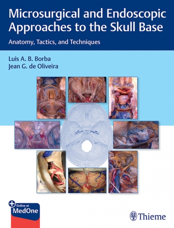 View Details for Microsurgical and Endoscopic Approaches to the Skull Base