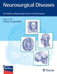 View Details for Neurosurgical Diseases