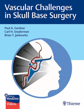 View Details for Vascular Challenges in Skull Base Surgery