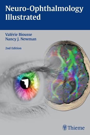 Ophthalmology neuro ophthalmology illustrated neuro ophthalmology illustrated fandeluxe Images