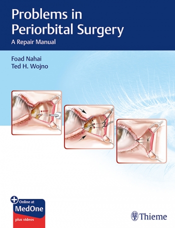 View Details for Problems in Periorbital Surgery