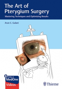 View Details for The Art of Pterygium Surgery