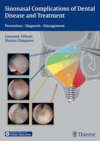 View Details for Sinonasal Complications of Dental Disease and Treatment
