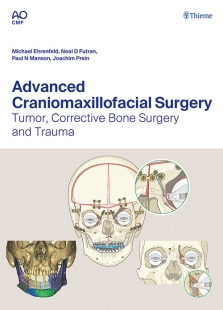 View Details for Advanced Craniomaxillofacial Surgery