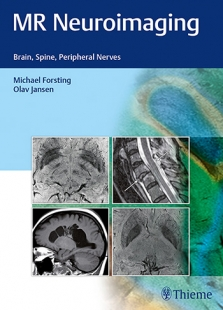 View Details for MR Neuroimaging