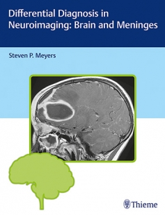 View Details for Differential Diagnosis in Neuroimaging: Brain and Meninges