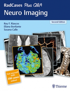 View Details for RadCases Plus Q&A Neuro Imaging