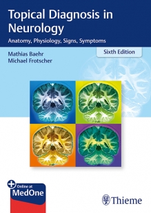 View Details for Topical Diagnosis in Neurology