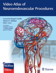 View Details for Video Atlas of Neuroendovascular Procedures