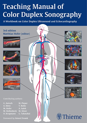 View Details for Teaching Manual of Color Duplex Sonography