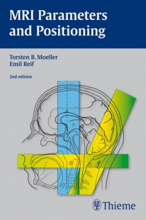 View Details for MRI Parameters and Positioning