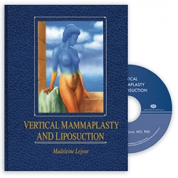 View Details for Vertical Mammaplasty and Liposuction