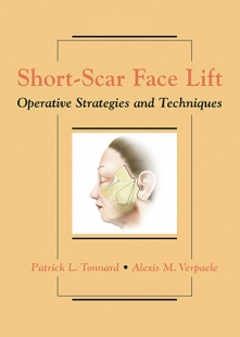 View Details for Short-Scar Face Lift