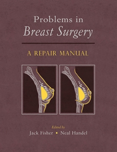 View Details for Problems in Breast Surgery: A Repair Manual