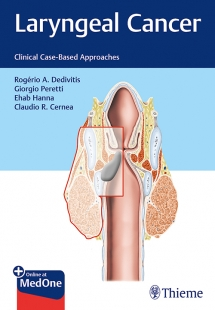 View Details for Laryngeal Cancer