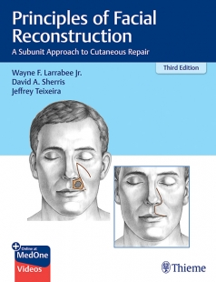 View Details for Principles of Facial Reconstruction